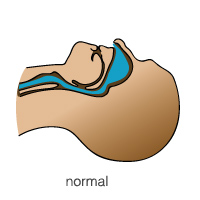 airway-normal